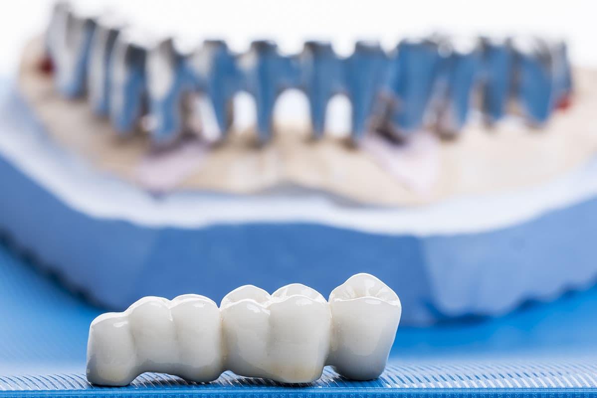 coronas dentales zaragoza