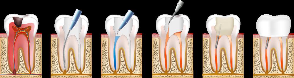 fases de la endodoncia
