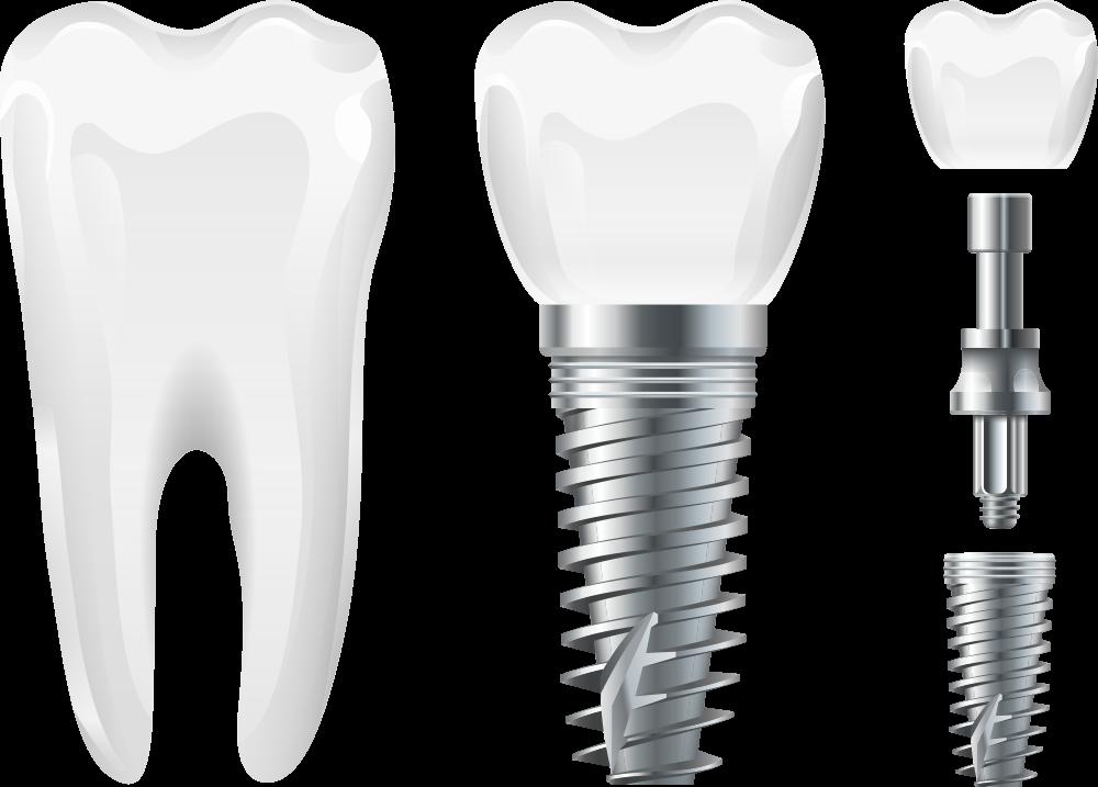 duracion implantes dentales